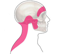 Cefalee muscolo tensive fisioiama for Mal di testa da cervicale quanto puo durare